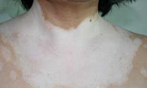白斑病的治疗办法是什么
