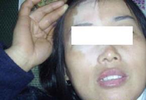 脸上白斑病怎么治疗