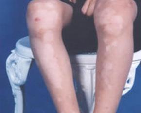 小腿上长小白点是怎么回事