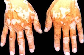 白癜风晚期症状的表现
