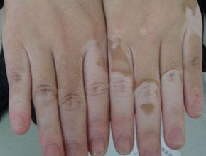 白斑病如何治疗